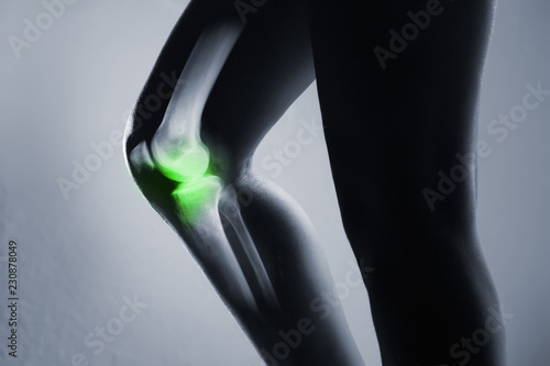 Fotografiet  Human knee joint and leg in x-ray, on gray background