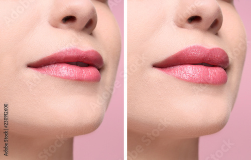 Photo Woman before and after lips augmentation procedure, closeup