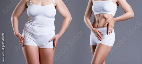 Fotografía  Woman's body before and after weight loss on gray background