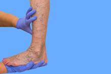 Lower Limb Vascular Examinatio...