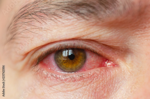 Closeup irritated infected red bloodshot eyes, conjunctivitis Canvas Print