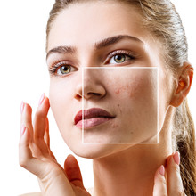 Young Woman With Acne Skin In ...