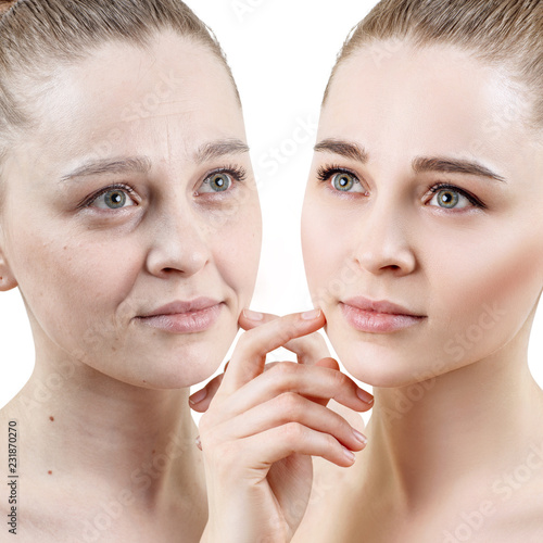 Foto op Plexiglas Hoogte schaal Portrait of woman before and after skin rejuvenation.