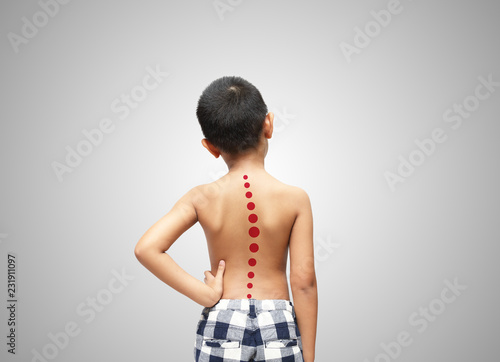 Fotografía  Asian kid with scoliosis, isolated on white background