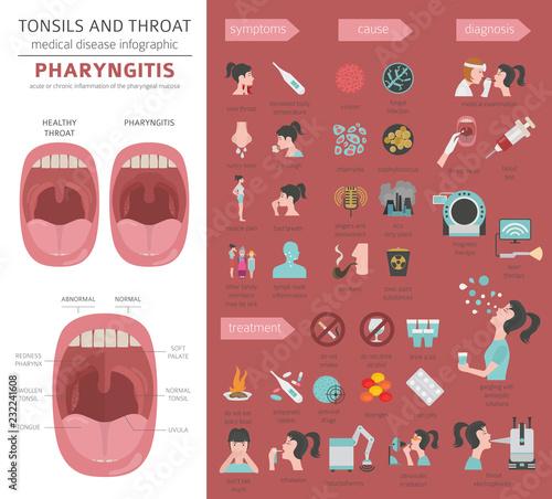 Fototapeta Tonsils and throat diseases