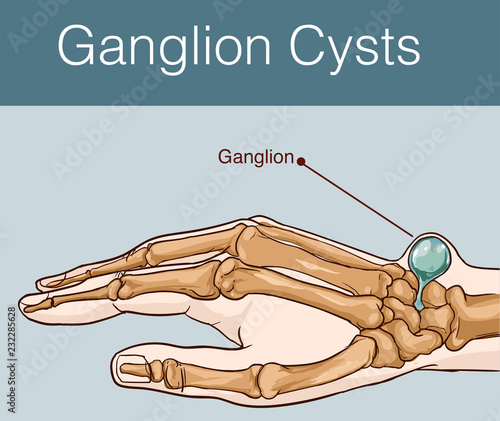 Photo vector illustration of a Ganglion cyst