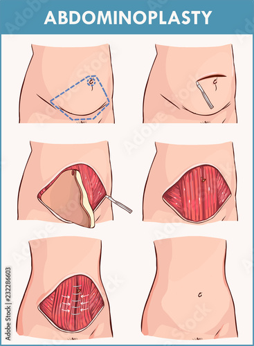 Fotografering  Vector illustration of a abdominoplasty and Lipectomy Procedures