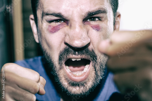 Fotografie, Obraz  Man's face after the fight and assault