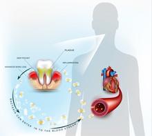 Gum Disease Inflammation Bacte...