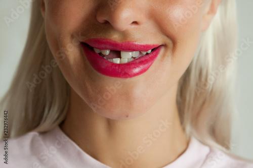 Photo Toothless smile