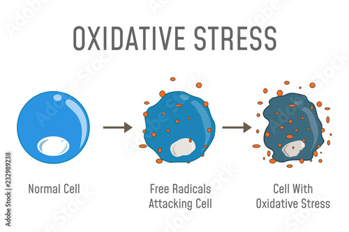 Fotografía  Oxidative Stress Diagram
