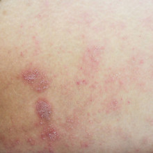 Ill Allergic Rash Dermatitis Eczema Skin Texture , Allergic Skin Lesions