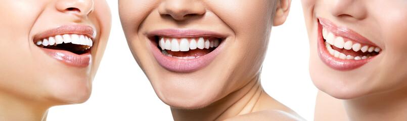 Piękny szeroki uśmiech młodych świeżych kobiet z wielkimi zdrowymi białymi zębami, odizolowywający nad białym tłem. Uśmiechnięte szczęśliwe kobiety. Śmiejąc się kobiece usta. Zębów zdrowia, wybielania, protetyki i opieki