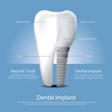 Human Teeth And Dental Implant Vector Illustration