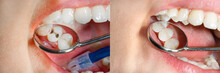 Teeth During Treatment Close-up In A Dental Clinic. Dental Photopolymer Composite Filler.