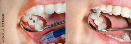 Teeth during treatment close-up in a dental clinic Tablou Canvas
