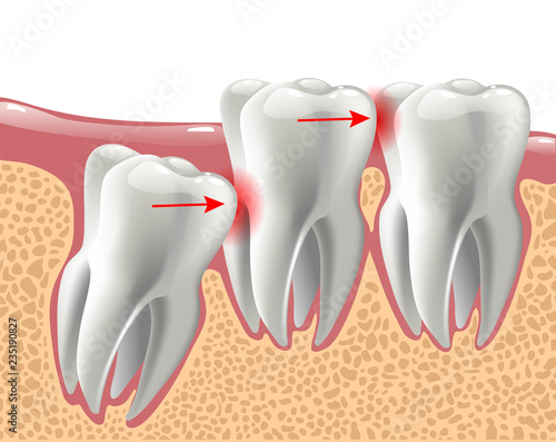 realistic 3D teeth, and wisdom tooth problems Fototapet