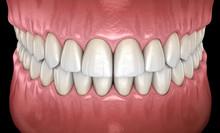 Healthy Human Teeth With Norma...