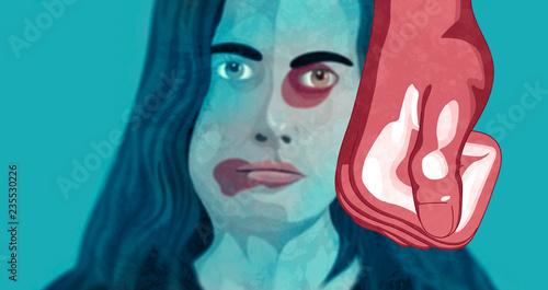 Obraz na plátně Violenza domestica, donna depressione, maltrattamento, picchiare, ragazza, bambi