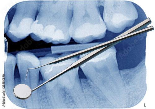Fotografia  Dentalspiegel und Sonde vor Röntgenbild mit Zähnen
