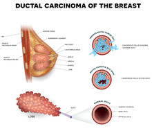 Ductal Carcinoma Of The Breast, Detailed Medical Illustration. Ductal Cancer In Situ And Invasive Ductal Cancer Cross Section Anatomy On A White Background.