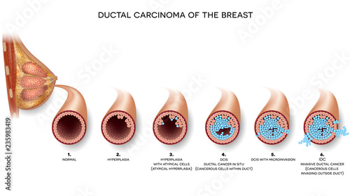 Valokuva Ductal carcinoma of the breast cross section anatomy, detailed anatomy illustration