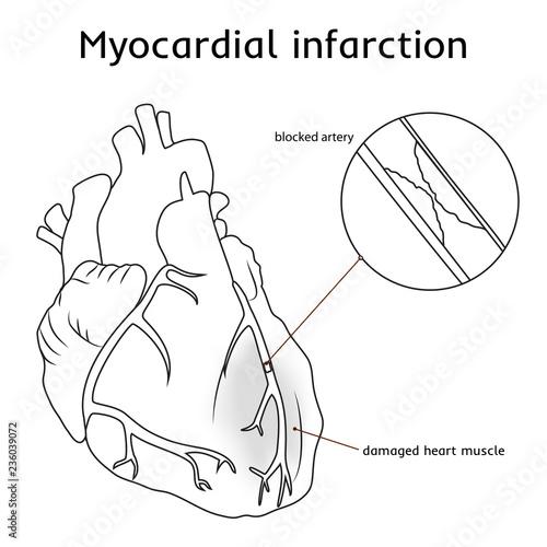 Myocardial infarction  Heart attack  Blocked artery, damaged