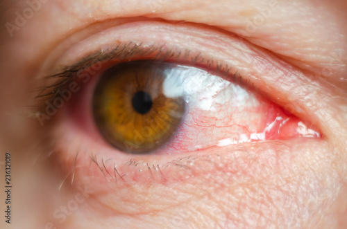 Fotografie, Obraz  Closeup irritated infected red bloodshot eyes, conjunctivitis