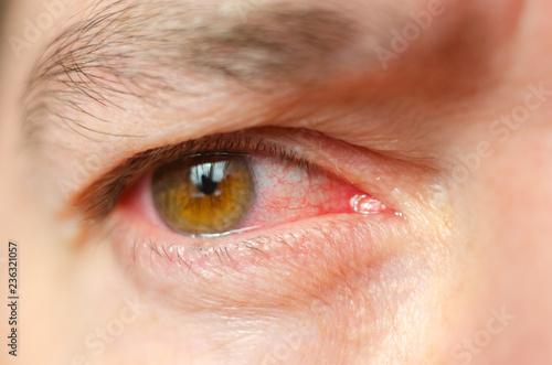 Photo Closeup irritated infected red bloodshot eyes, conjunctivitis