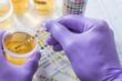 canvas print picture - urine test strips in purple gloves
