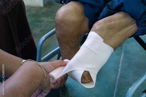 Photo elastic bandaging of below knee amputation