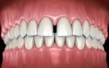 Diastema Of Central Incisors T...