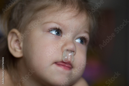 Valokuva  child with runny nose