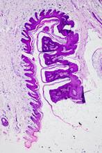 Skin Papilloma Of Human Micrograph.