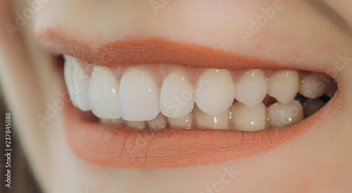 Fotografie, Obraz  Hollywood smile with porcelain crowns and veneers