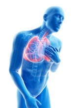 Illustration Of A Man With An Inflamed Lung