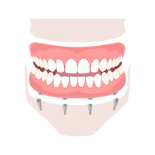 Removable Denture On Implants. Removable Denture Of The Upper And Lower Jaw On Four Implants. Implant Of The Upper And Lower Jaw. Full Arch Prosthesis On Dental Implants. Vector Illustration