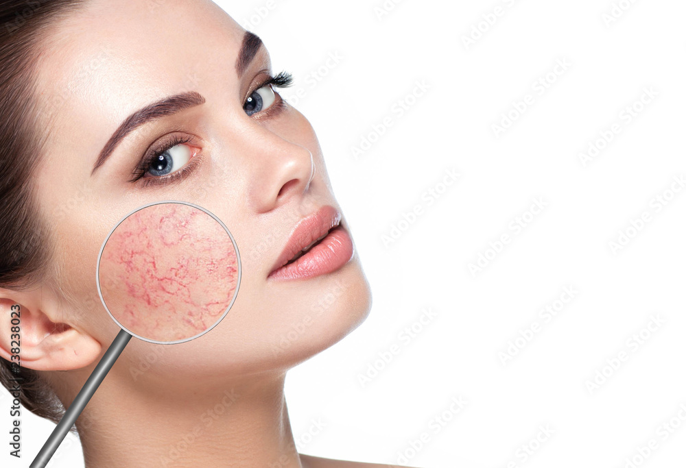 Fototapety, obrazy: magnifying glass showing couperose on womans face
