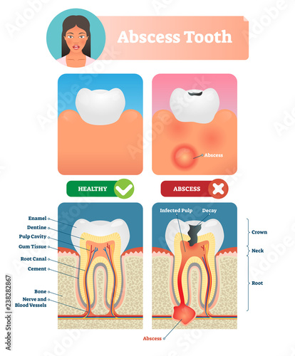 Photo Abscess tooth vector illustration
