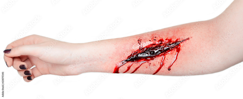 Fototapety, obrazy:  cut wound blood on hand cut sutsyd vein professional makeup flows blood