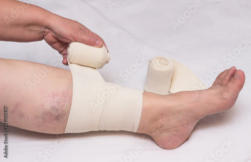 Photo Woman bandages leg with elastic bandage against varicose veins on legs and throm