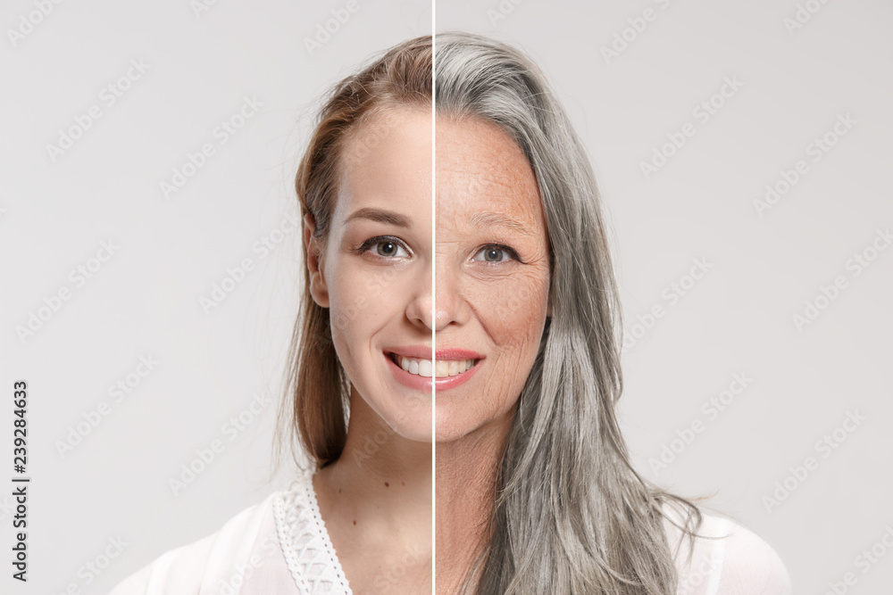 Fototapeta Comparison. Portrait of beautiful woman with problem and clean skin, aging and youth concept, beauty treatment and lifting. Before and after concept. Youth, old age. Process of aging and rejuvenation