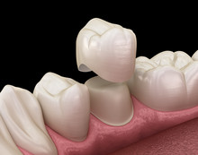 Dental Crown Premolar Tooth As...