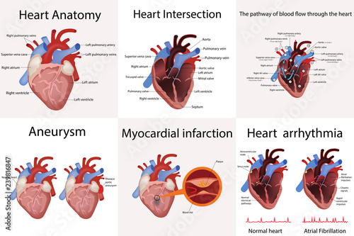 heart anatomy and types of heart disease vector illustration Wallpaper Mural