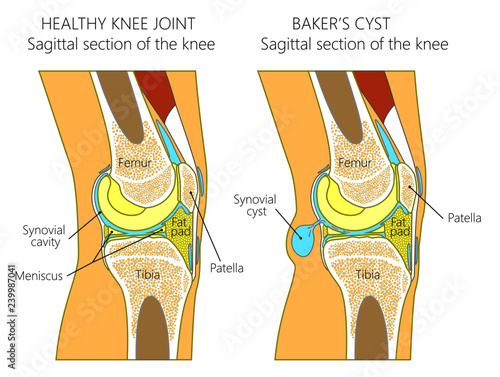 Photo Vector illustration of a healthy human knee joint and unhealthy knee with Baker's cyst
