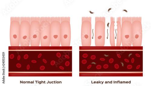 Fotografia  Celiac disease Small intestine lining damage