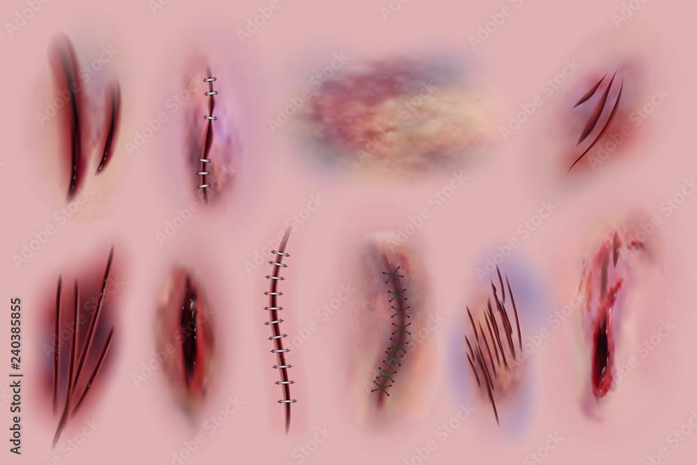 Fototapeta Bloody wounds. Scars, surgical stitches and bruis, skin cuts. Bloody wound textures vector isolated set. Illustration of scar skin cut, surgical stitch