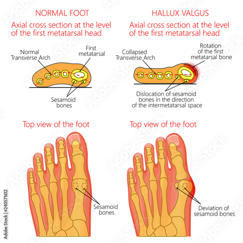 Vector illustration of a healthy human forefoot and a foot with hallux valgus, dislocation of sesamoid bones Canvas Print