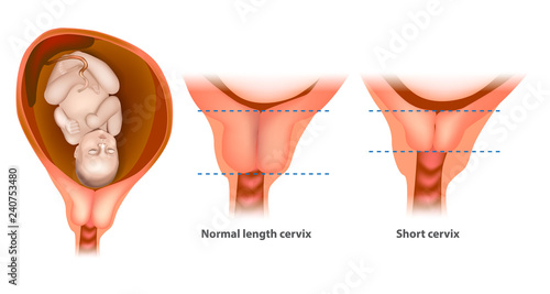 Vászonkép Normal length cervix and short cervix in Pregnancy
