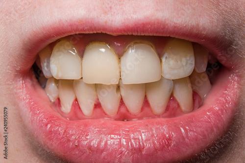 Fotografía  Yellow uneven broken teeth